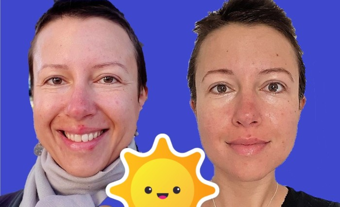 Why I stopped using tap water to rinse my face? #spots or beautiful skin